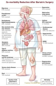 Obesity comorbidities after surgery
