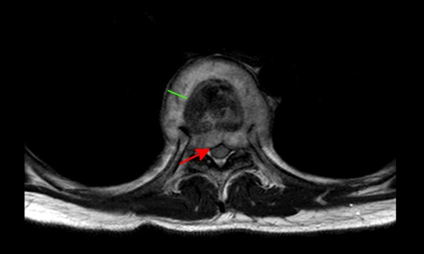 Abscess surrounding the involved vertebra (green line) with impingement of the spinal canal (red arrow).