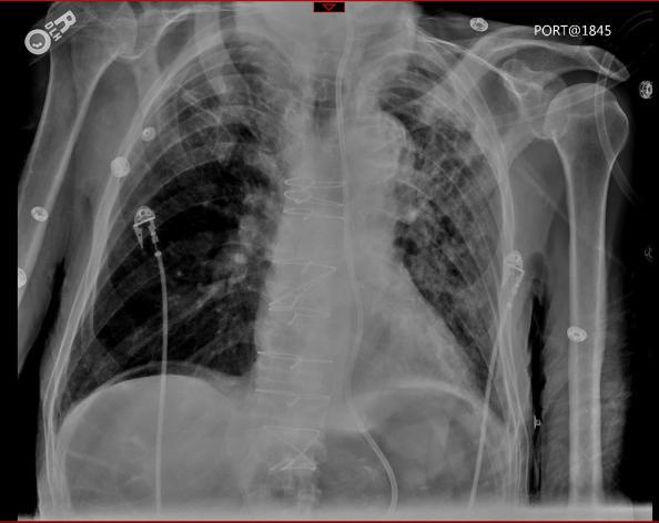 diaphragm air2
